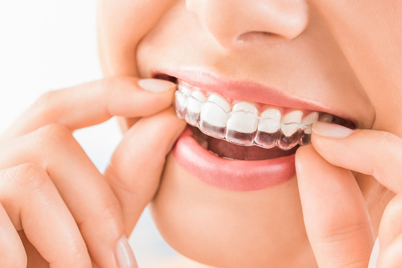 Benefits of Straight Teeth with Invisalign
